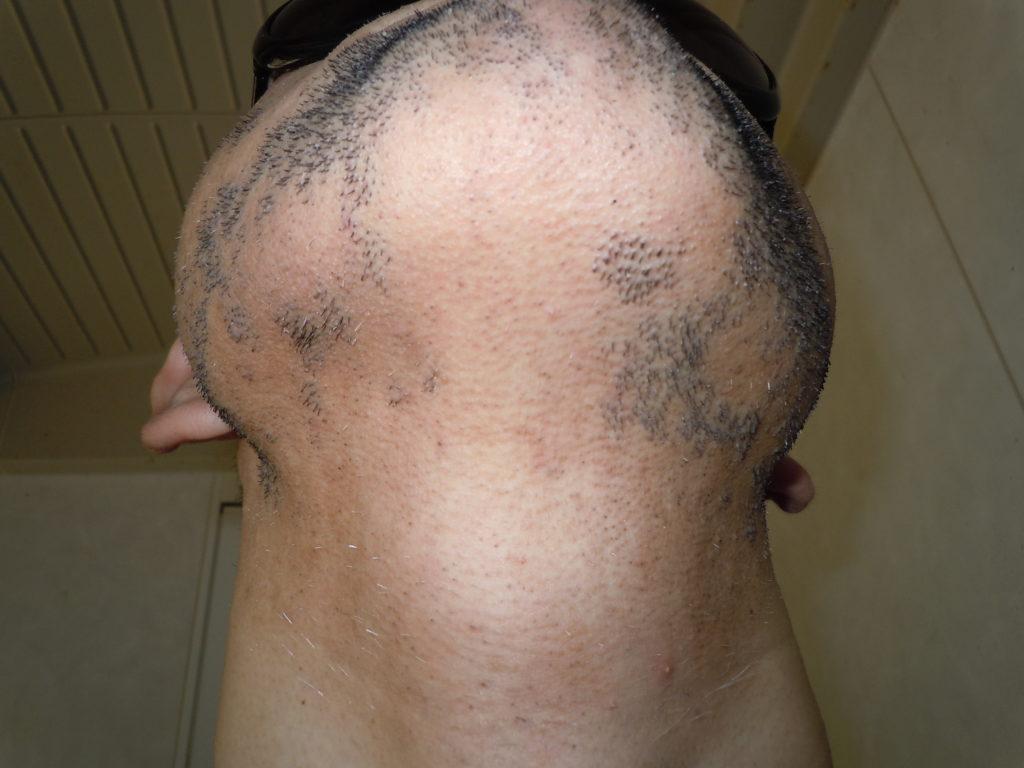 脱毛3か月後の成果です♪(写真④)