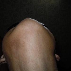 脱毛1年3ヶ月後の成果です♪(写真③)